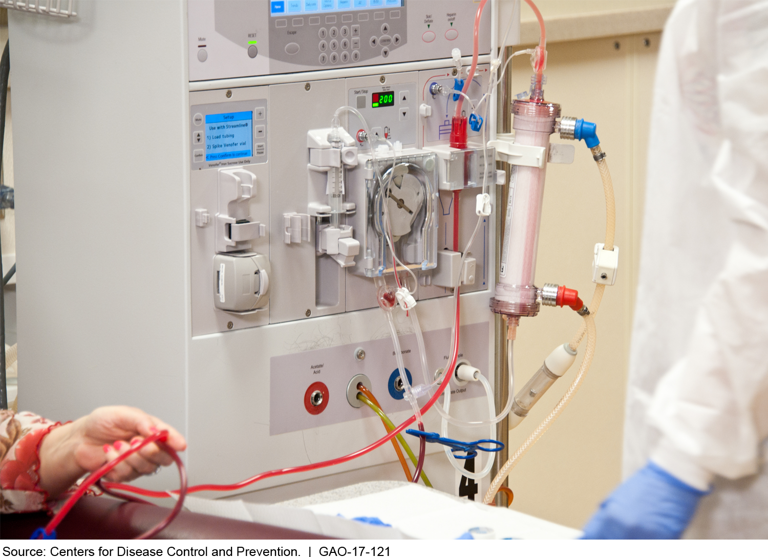 Photo showing patient receiving dialysis.